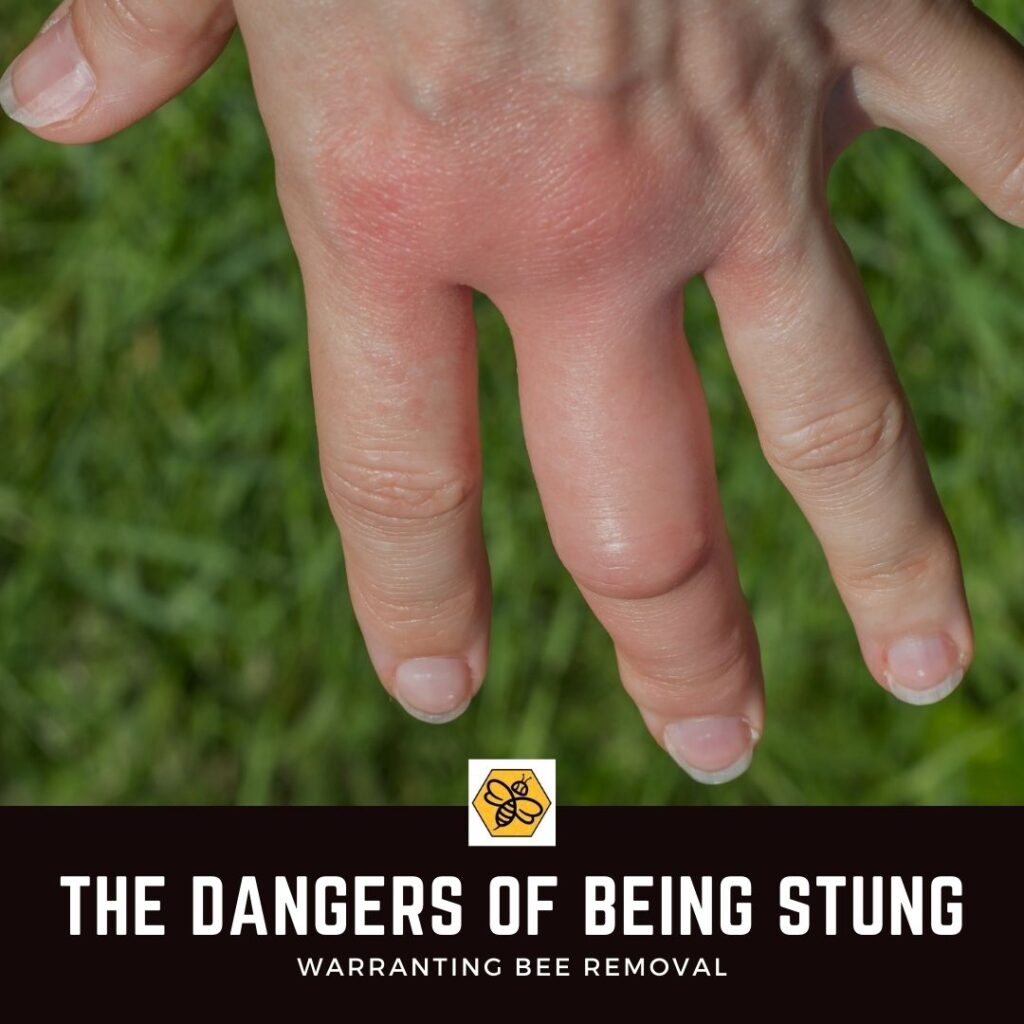 The-different-symptoms-that-come-from-a-bee-sting